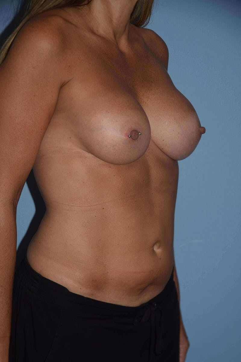 Breast Augmentation Gallery - Patient 14281590 - Image 2