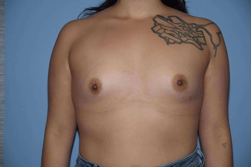 Breast Augmentation Gallery - Patient 14281591 - Image 1