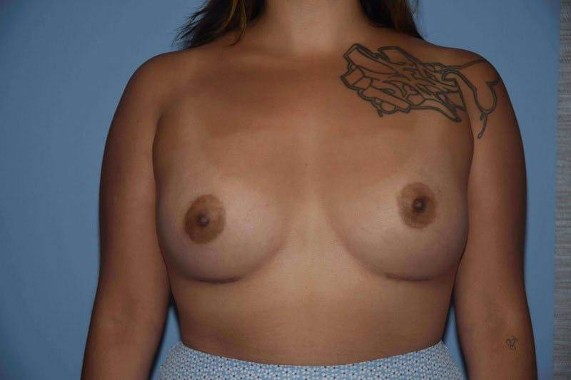 Breast Augmentation Gallery - Patient 14281591 - Image 2