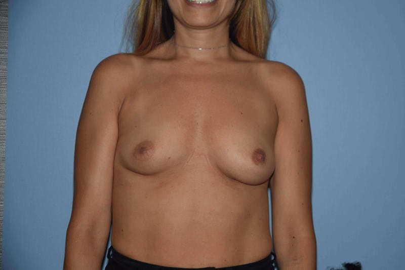 Breast Augmentation Gallery - Patient 14281595 - Image 1