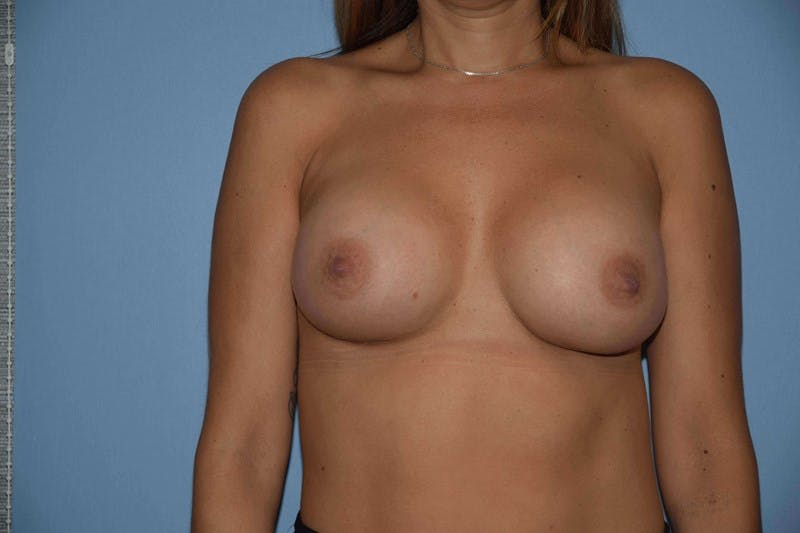 Breast Augmentation Gallery - Patient 14281595 - Image 2