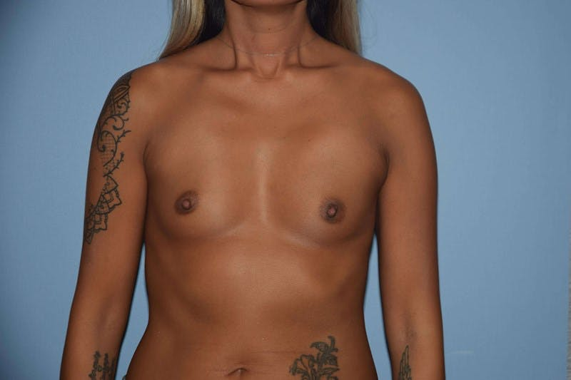Breast Augmentation Gallery - Patient 14281597 - Image 1