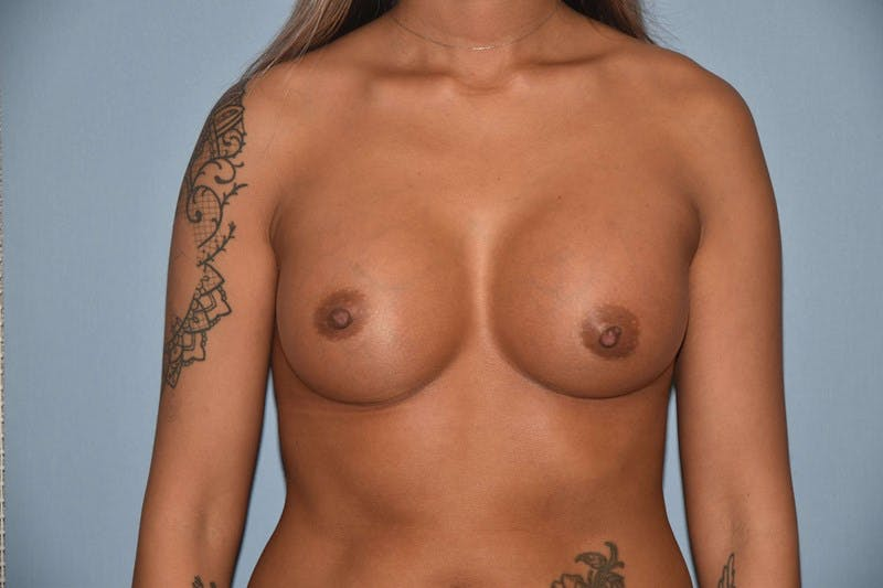 Breast Augmentation Gallery - Patient 14281597 - Image 2