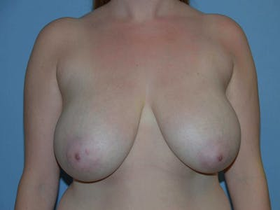 Breast Reduction Gallery - Patient 9604773 - Image 50