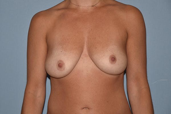Breast Augmentation Lift Gallery - Patient 15930097 - Image 1