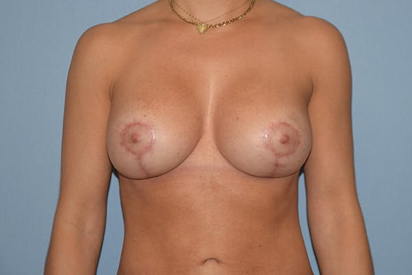 Breast Augmentation Lift Gallery - Patient 15930097 - Image 2