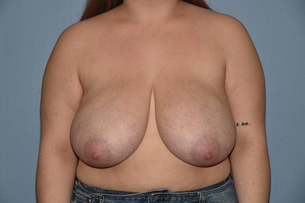 Breast Reduction Gallery - Patient 15930314 - Image 1