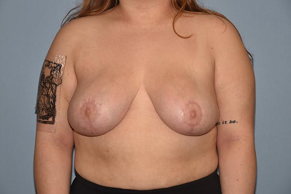 Breast Reduction Gallery - Patient 15930314 - Image 2