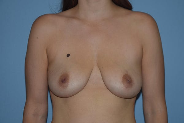 Breast Augmentation Lift Gallery - Patient 16480556 - Image 1