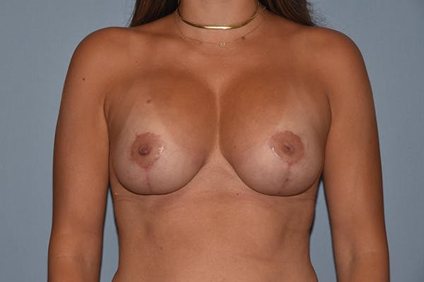 Breast Augmentation Lift Gallery - Patient 16480556 - Image 2