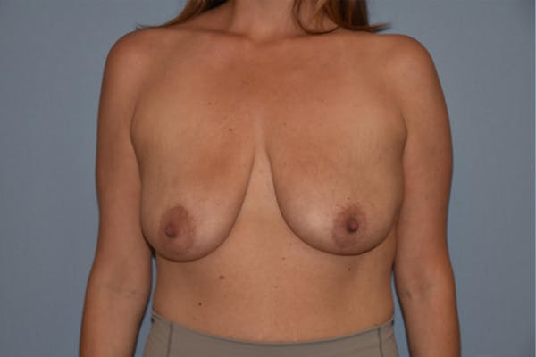 Breast Augmentation Lift Gallery - Patient 16480557 - Image 1