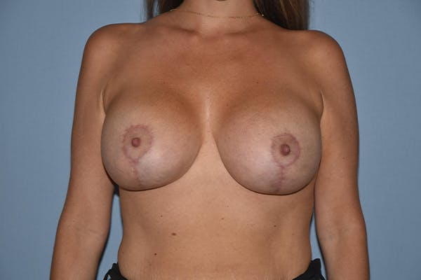 Breast Augmentation Lift Gallery - Patient 16480557 - Image 2