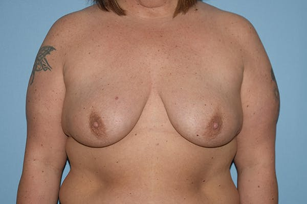 Breast Augmentation Lift Gallery - Patient 16480558 - Image 1