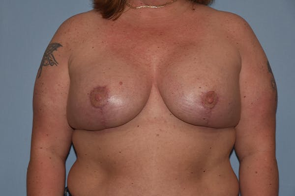 Breast Augmentation Lift Gallery - Patient 16480558 - Image 2