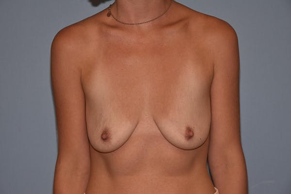 Breast Augmentation Lift Gallery - Patient 16480559 - Image 1