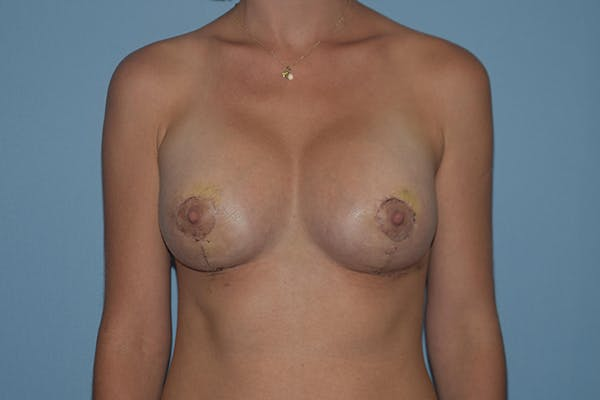 Breast Augmentation Lift Gallery - Patient 16480559 - Image 2