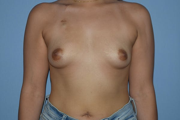 Breast Reconstruction Gallery - Patient 16486406 - Image 1