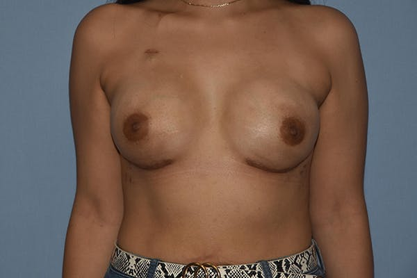 Breast Reconstruction Gallery - Patient 16486406 - Image 2