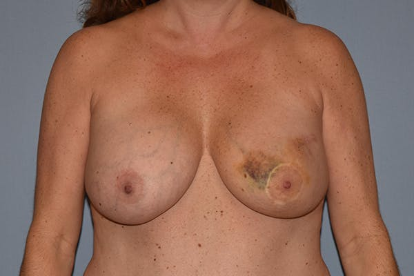 Breast Reconstruction Gallery - Patient 16486407 - Image 1