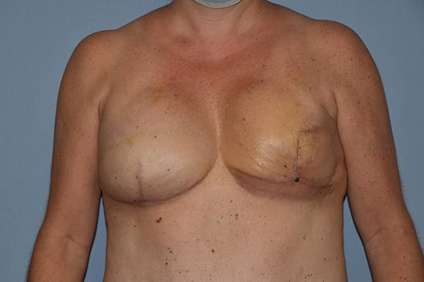 Breast Reconstruction Gallery - Patient 16486407 - Image 2
