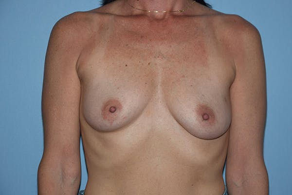 Breast Reconstruction Gallery - Patient 16486408 - Image 1