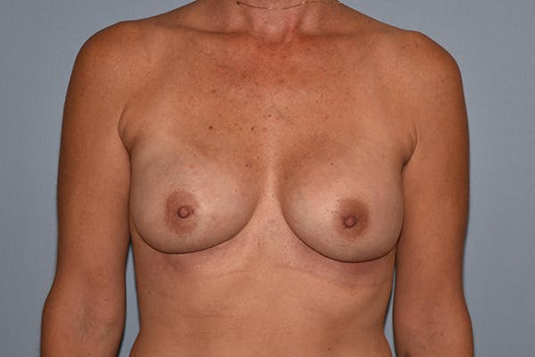 Breast Reconstruction Gallery - Patient 16486408 - Image 2