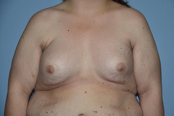 Breast Reconstruction Gallery - Patient 16486409 - Image 1