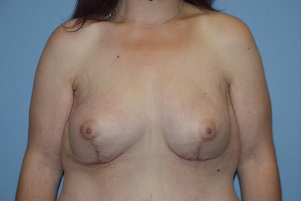 Breast Reconstruction Gallery - Patient 16486409 - Image 2