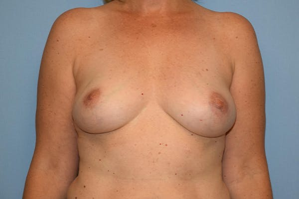 Breast Reconstruction Gallery - Patient 16486410 - Image 1