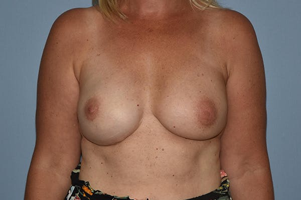 Breast Reconstruction Gallery - Patient 16486410 - Image 2