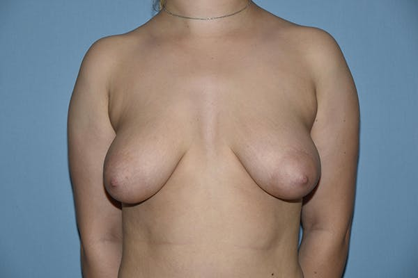 Breast Augmentation Lift Gallery - Patient 16509769 - Image 1