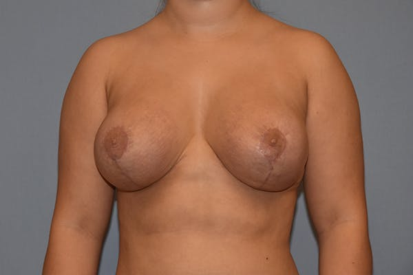 Breast Augmentation Lift Gallery - Patient 16509769 - Image 2