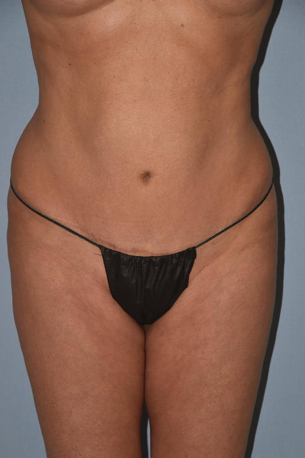 Liposuction Gallery - Patient 16555409 - Image 1
