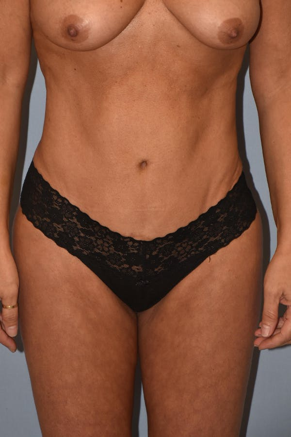 Liposuction Gallery - Patient 16555409 - Image 2