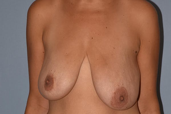 Breast Augmentation Lift Gallery - Patient 17336189 - Image 1