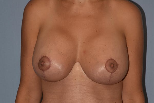 Breast Augmentation Lift Gallery - Patient 17336189 - Image 2