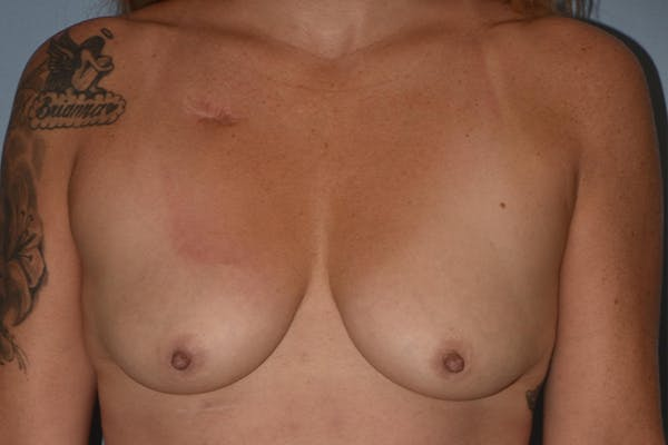 Breast Augmentation Gallery - Patient 17337123 - Image 1