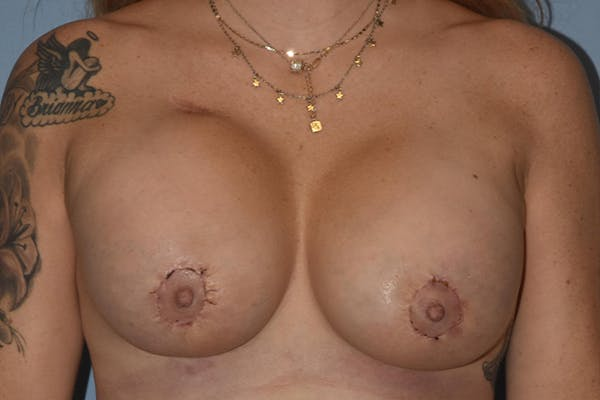 Breast Augmentation Gallery - Patient 17337123 - Image 2