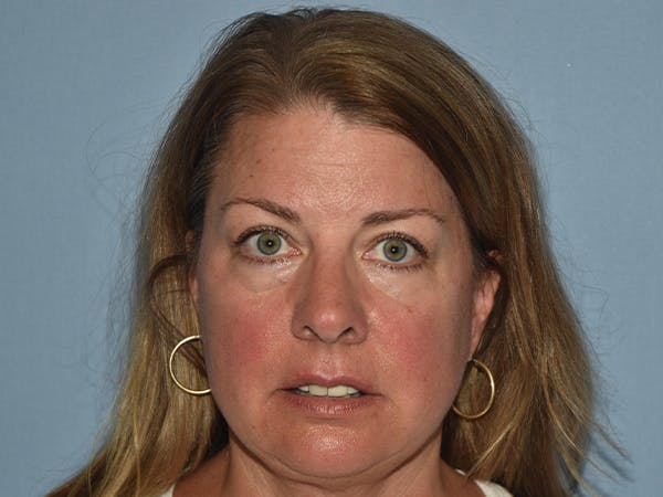 Facial Fat Grafting Gallery - Patient 17337871 - Image 1