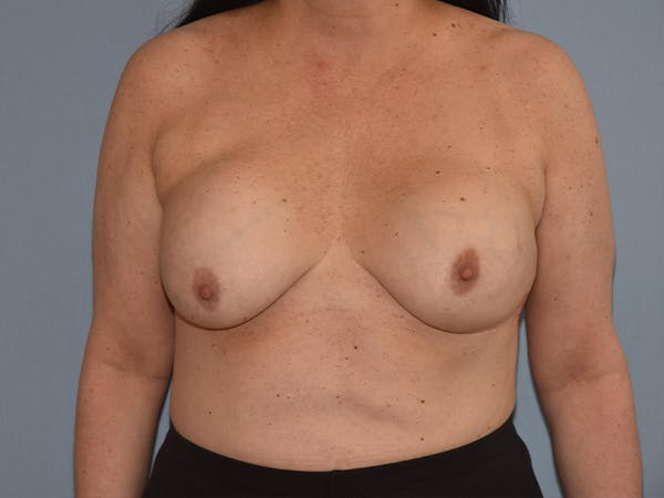 Breast Lift Gallery - Patient 17338199 - Image 1