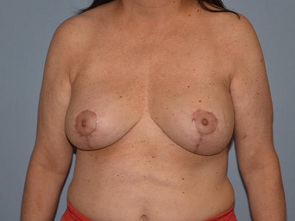 Breast Lift Gallery - Patient 17338199 - Image 2