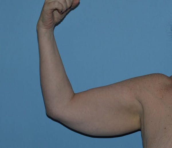 After Weight Loss Surgery Gallery - Patient 6389616 - Image 1