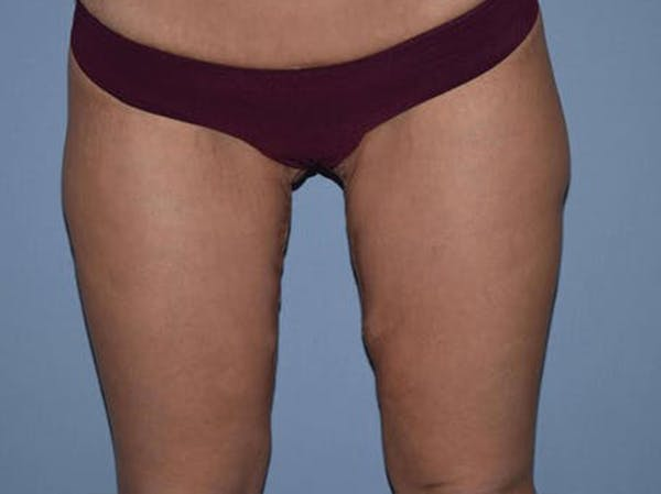 Thigh Lift Gallery - Patient 6389544 - Image 2