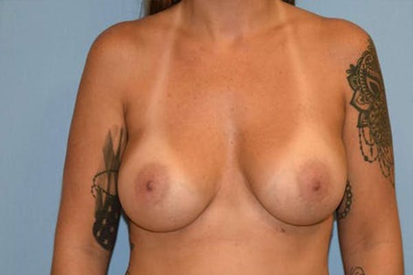 Breast Revision Gallery - Patient 6389735 - Image 1