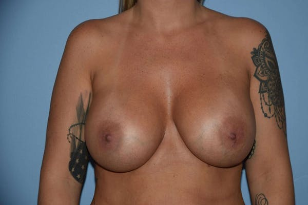 Breast Revision Gallery - Patient 6389735 - Image 2
