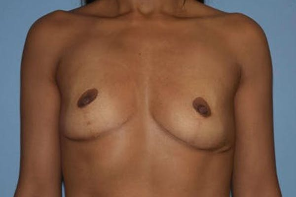 Breast Revision Gallery - Patient 6389738 - Image 1