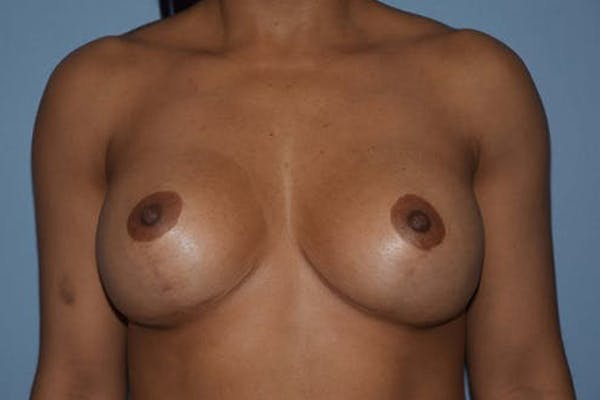 Breast Revision Gallery - Patient 6389738 - Image 2