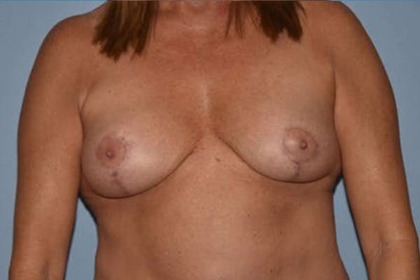 Breast Implant Removal Gallery - Patient 6389693 - Image 2