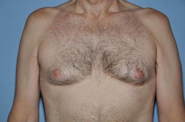 Gynecomastia Gallery - Patient 6389432 - Image 1