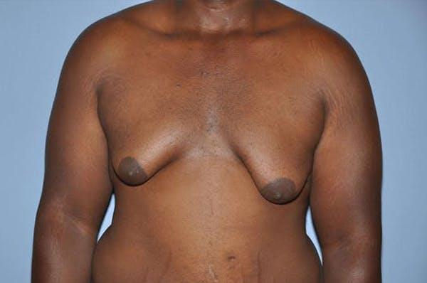 Gynecomastia Gallery - Patient 6389434 - Image 1